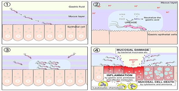con đường lây nhiễm của vi khuẩn hp