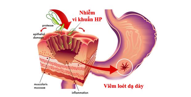 Virus hp nguy hiểm có thể gây ung thư dạ dày